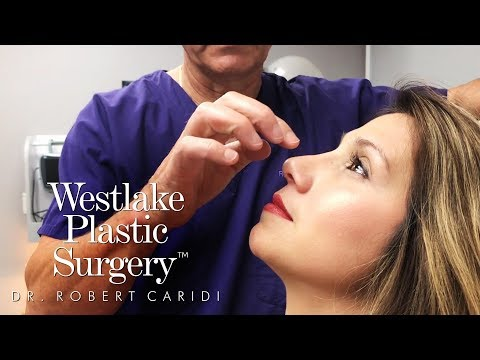 Rhinoplasty - An Incredible Nose Job Surgery Experience