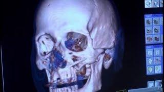 Diagnóstico por imagem: como funciona? (Raios X, Tomografia, Ressonância Magnética, Ultrassom)