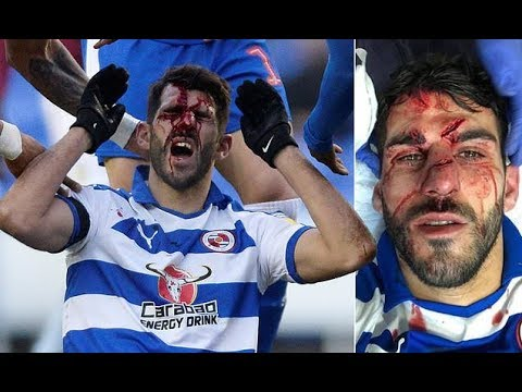 Nelson Oliveira left with gruesome facial i njury after Tyrone Mings stamp
