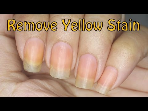 How to Remove Yellow Stain on Nails! - YouTube