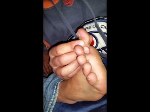 He eats man's toe nail for $140