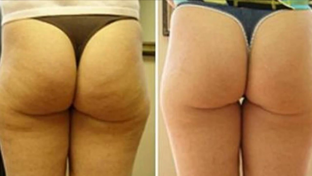 Cellulite - Before and After Pictures - YouTube