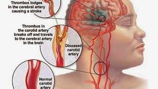 Инсульт - Атеросклероз сонных артерий. (ACT I) Carotid artery Stenting.