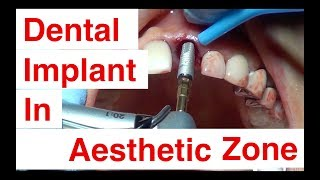 How to do dental implant in aesthetic zone and to do bone graft