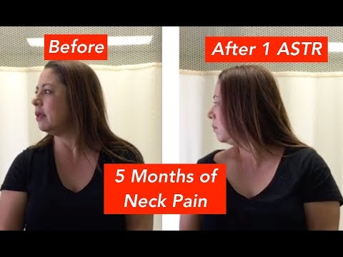 Gina's Chronic Neck Pain Was Relieved in Minutes!