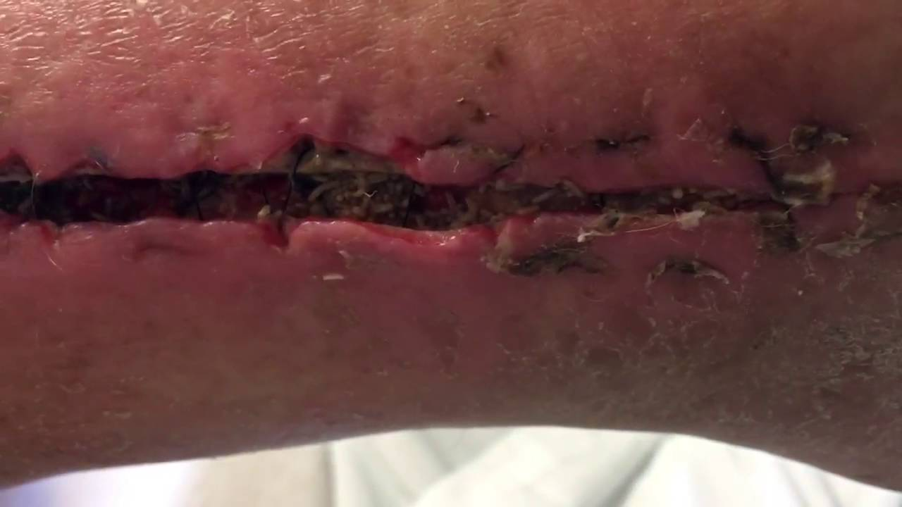 (#TheyNasty) White Man Wants His Obama Care Back! Wound Care Gone Wrong - MYIASIS
