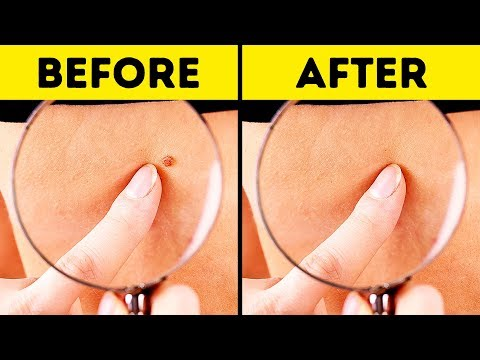 10 Effective Ways to Remove Skin Tags Naturally