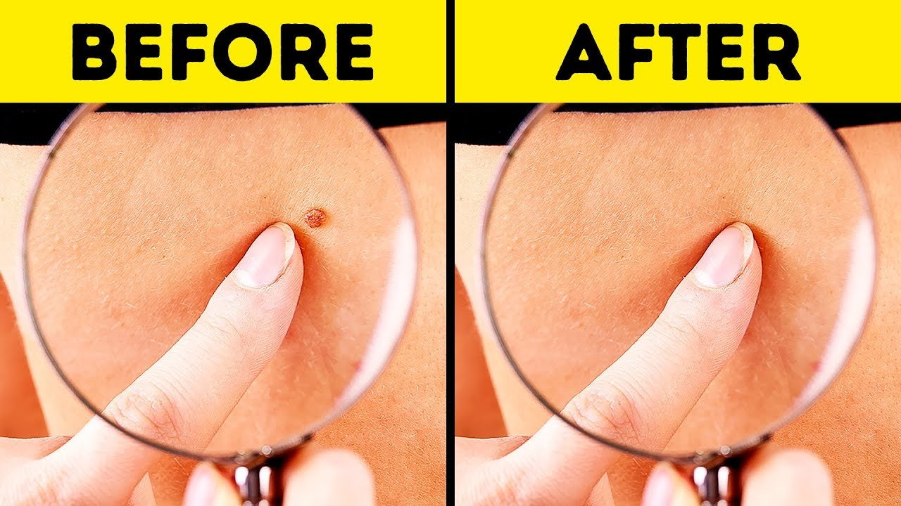 10 Effective Ways To Remove Skin Tags Naturally Youtube