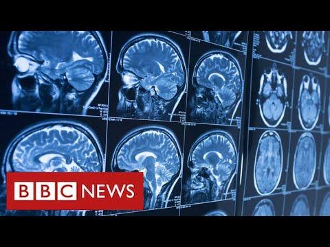 Covid survivors may face life-long brain injuries - BBC News