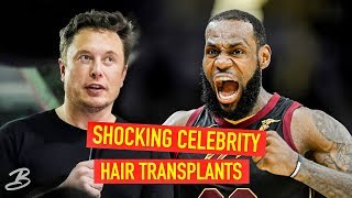 5 Celebrities That Got Hair Transplants - You
