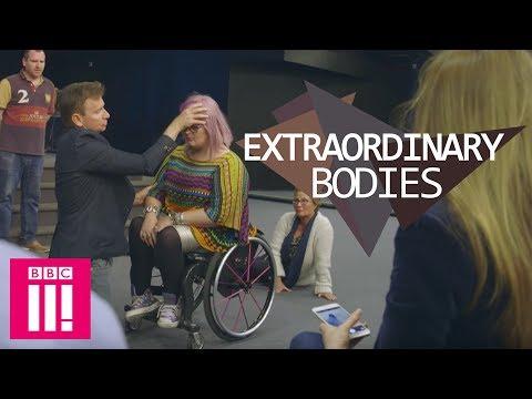 Can A Faith Healer Make Me Walk Again?   Extraordinary Bodies