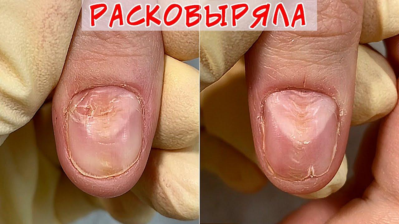 Расковыряла ногти / Почему ногти волнистые?