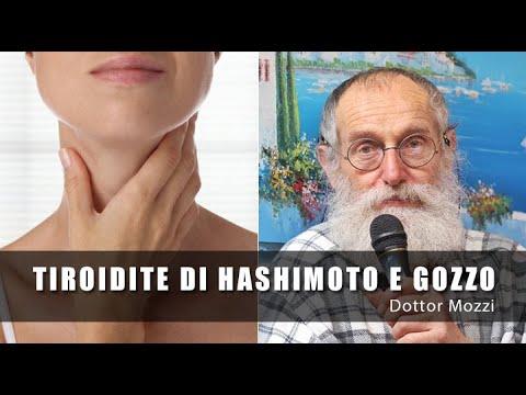 dottor-mozzi:-tiroidite-di-hashimoto-e-gozzo---dieta-gruppo-b