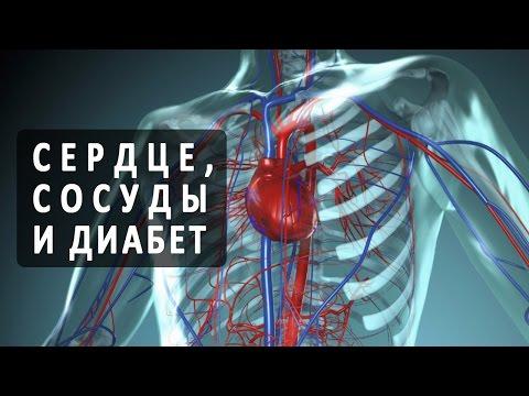 Сердечная недостаточность. Причины, симптомы, признаки