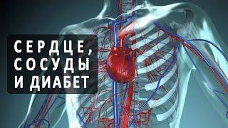 Как сахарный диабет влияет на сердце и сосуды?