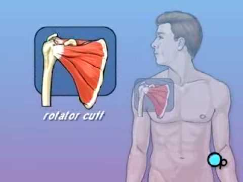 PreOp® Patient Education: Rotator Cuff Repair Open Surgery