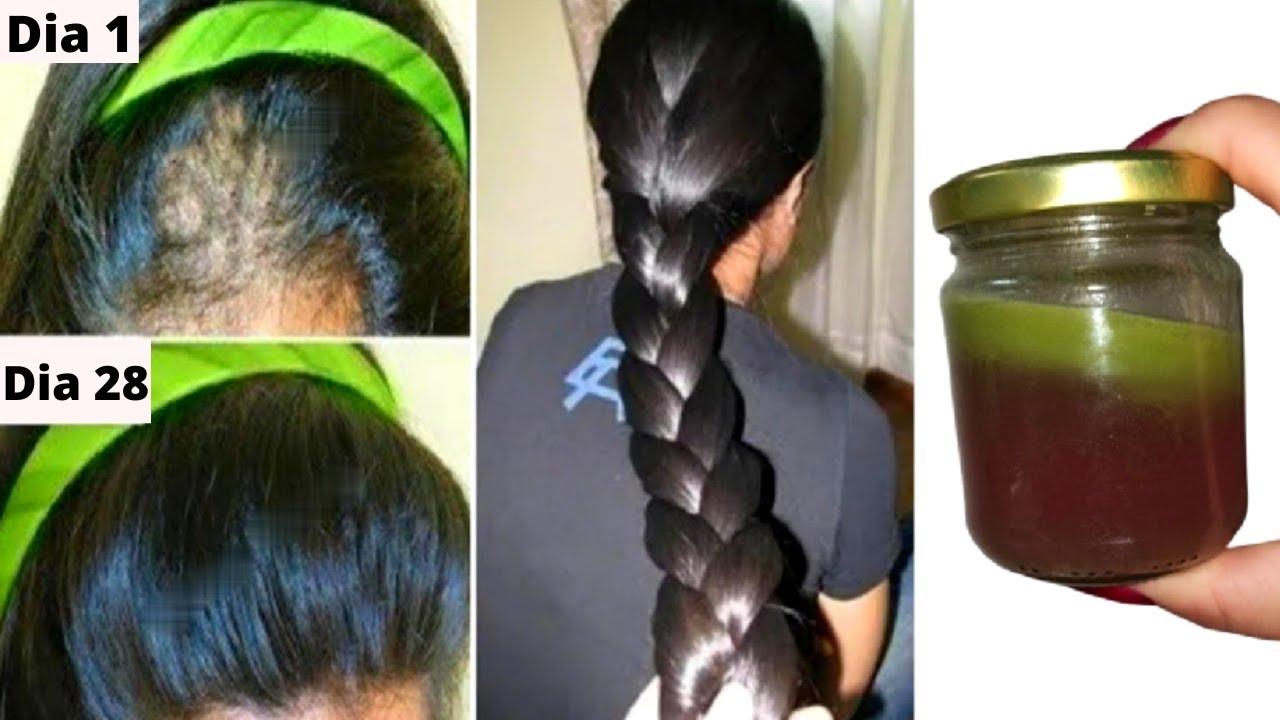 o segredo indiano, 🌿 para deixar o cabelo crescer a uma velocidade de foguete e tratar a calvície