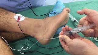 Ciatico lesion nervio mayor