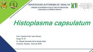 Histoplasma Antigen, Urine.
