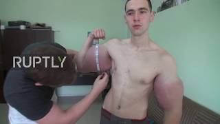 oh puh lease hercules 21 year old russian grows foot wide biceps after drug injections