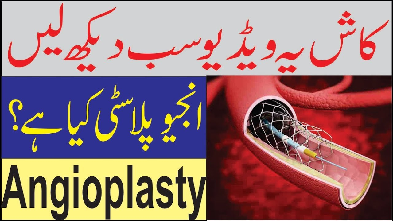 What is Angioplasty and Stent (Urdu / Hindi)