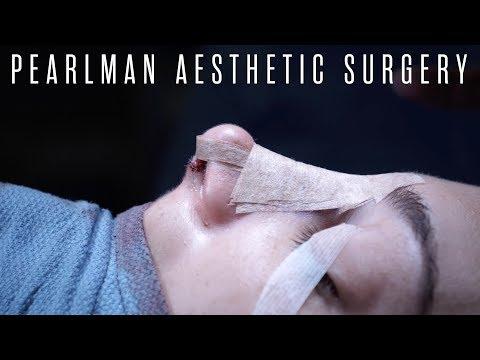 full-rhinoplasty-surgery---dr.-steven-pearlman-|-part-2