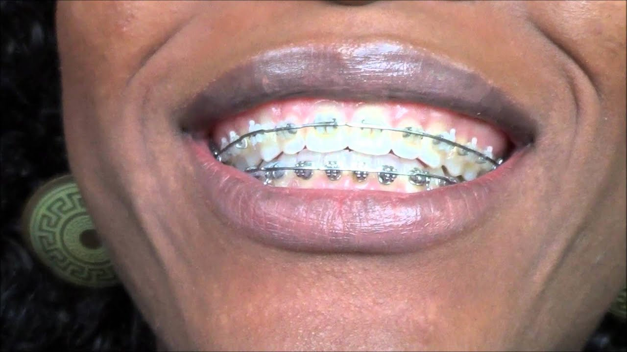 91 Archwire Removal On My Braces 8 28 2012 At The
