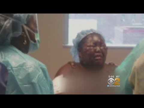 Bronx Girl Recovering After Being Scalded With Hot Water