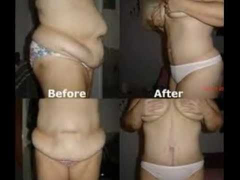 Lose stomach fat in a month
