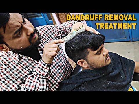 Dandruff removal with comb and hair treatment with vertilizer | Indian barber Relaxing ASMR