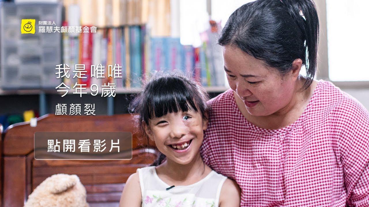 臺灣顱顏患童真實故事 唯唯9歲 顱顏裂 - YouTube