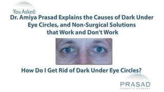 Non-Surgical Solutions that Treat Dark Under Eye Circles, and Those that Don't Work