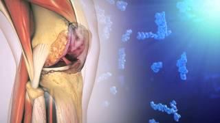 Hyaluronic Acid and Osteoarthritis of the Knee
