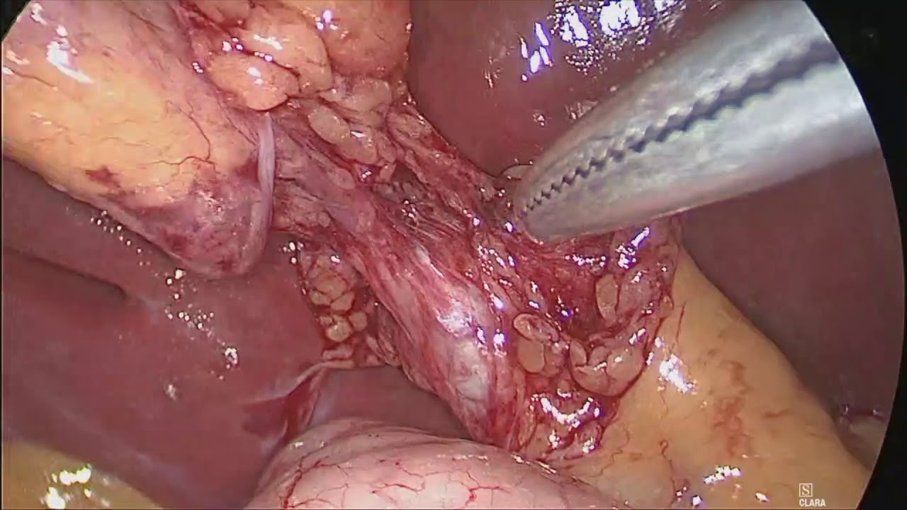 Dangerous And Rare Biliary Anatomy During Lap Chole Uncut By Dr