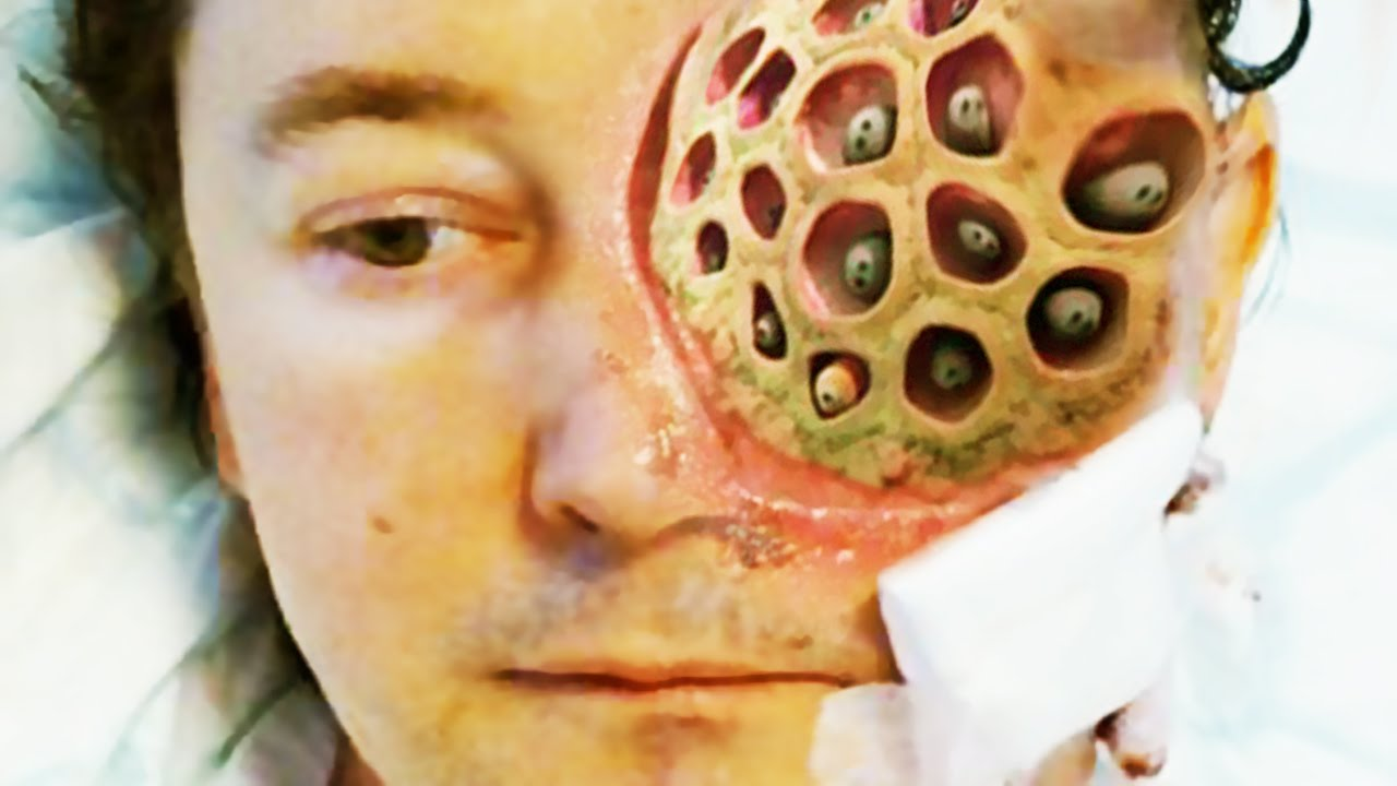 Trypophobia Test 2016 Youtube