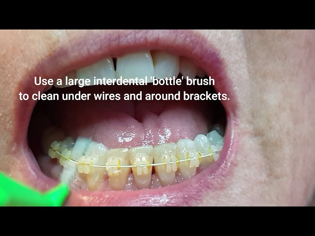 Flossing and Cleaning between teeth with braces/retainers