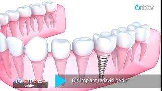 Diş implant tedavisi nedir?