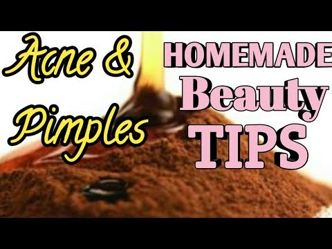 BEST DIY MASK FOR ACNE AND PIMPLES | BEST HOME REMEDIES | HOMEMADE BEAUTY TIPS