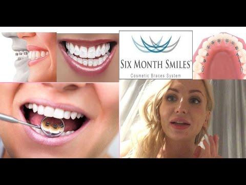 Брекеты : Ровные зубы за 6 месяцев, лингвальные