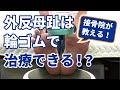 【外反母趾は輪ゴムで治療できる!?】愛知県の接骨院ハピネスグループ