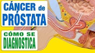 Cáncer de Próstata - Diagnóstico