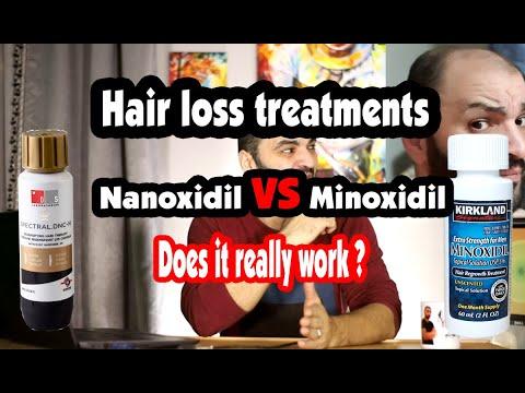 spectral-dnc-n-new-hair-loss-treatment-vs-minoxidil-5%