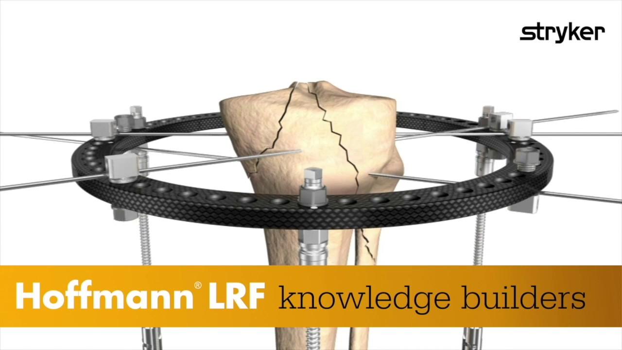 Stryker | Hoffmann LRF Build-a-longs – Butt Frame – Midfoot ...