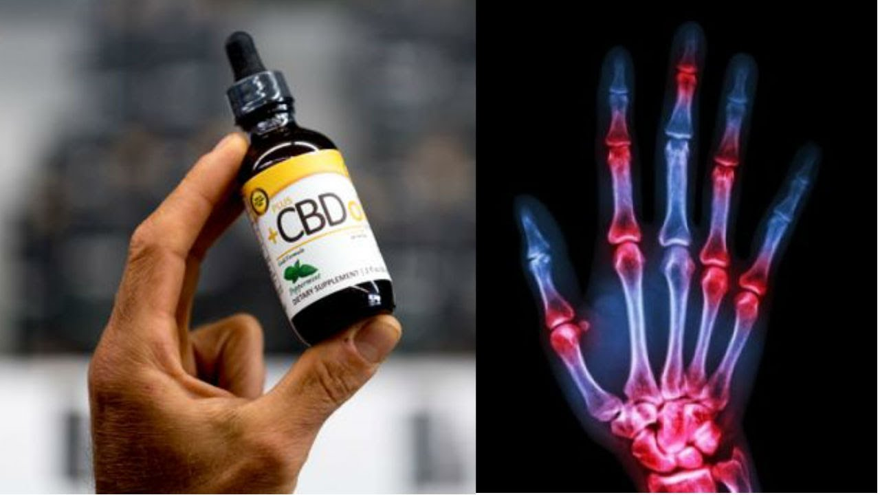 How CBD Oil Effects Your Body When You Take for Pain, Anxiety, Inflammation & More