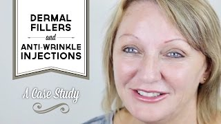 Case study dermal fillers & anti-wrinkle injections Melbourne - Dianne Thumbnail