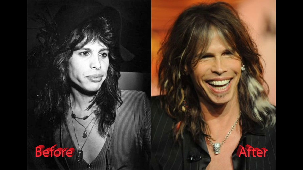 Steven Tyler Plastic Surgery Before And After Photos Youtube