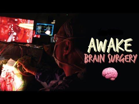 Awake surgery - Brain tumour