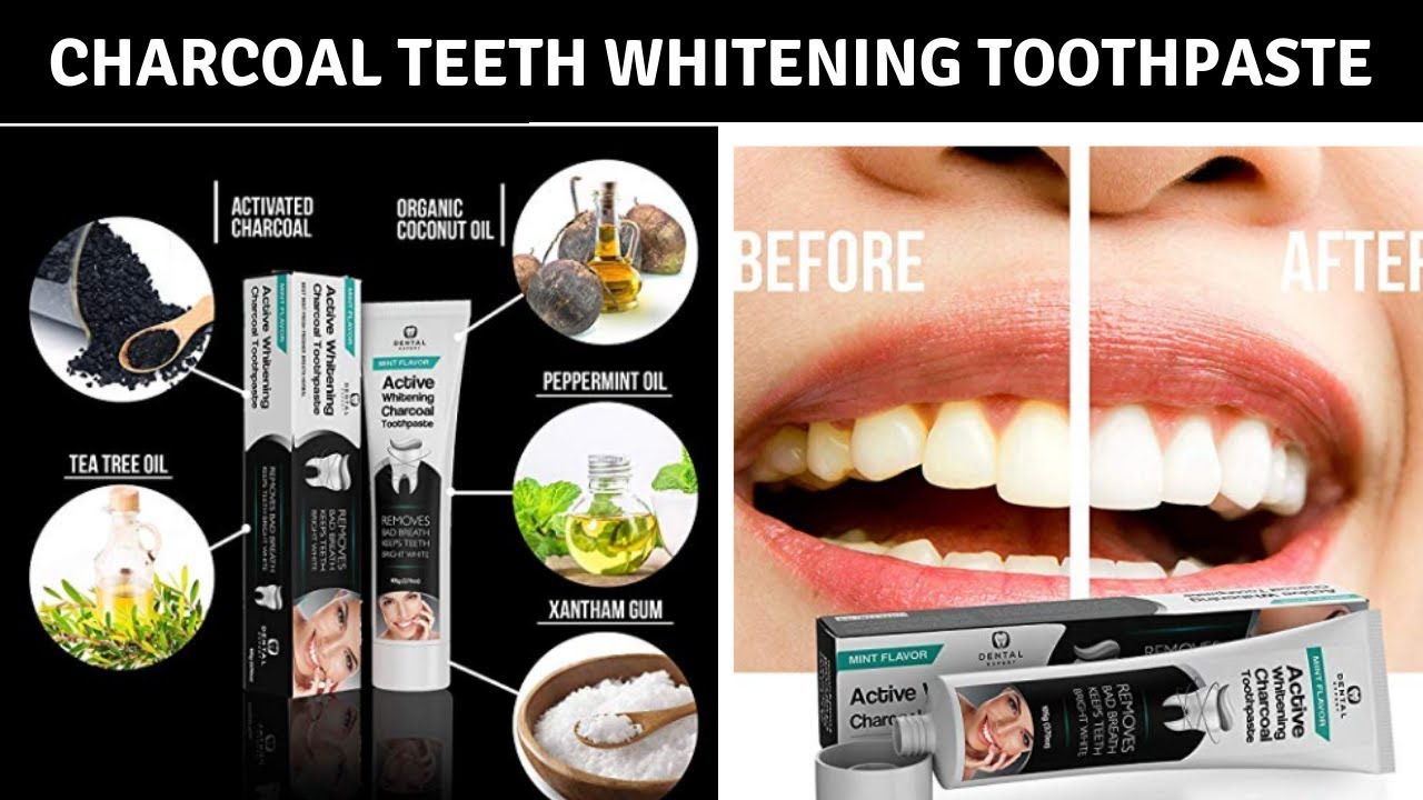 Activated Charcoal Teeth Whitening Advice From A Dentist