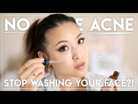 HOW I GOT RID OF MY ACNE (Stopped washing my face?!)