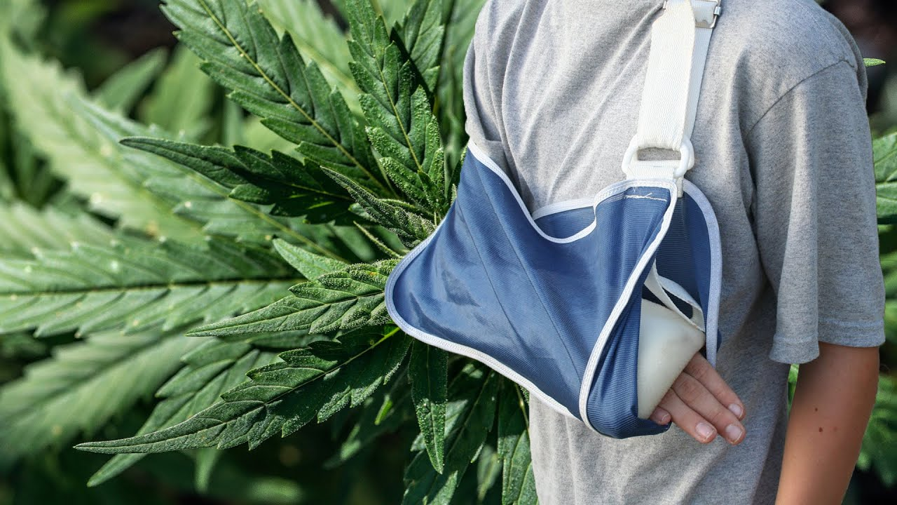 Image result for Marijuana Can Help With Healing Broken Bones!